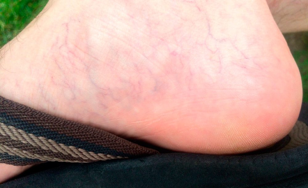 Fotos de varices en los pies